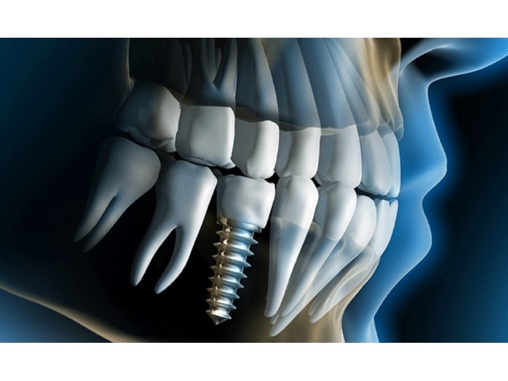 Why Dental Implants are The Best Solution for You -