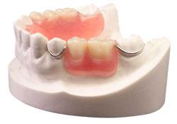 partial-denture-min