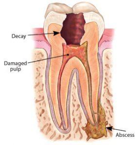 root-canal-abscess-min