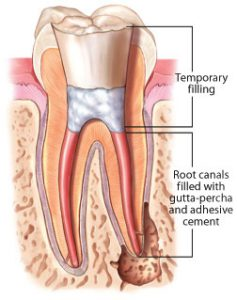 root-canal-filling-min