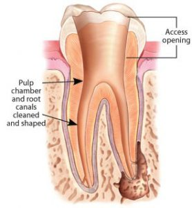 root-canal-pulp-chamber-min